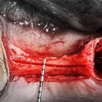Regeneration, Dental Aesthetics, Maxillofacial Buco Surgery