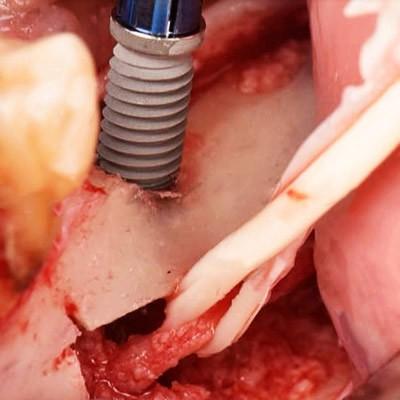 Regeneration, Dental Aesthetics, Maxillofacial Buco Surgery, regenaricón