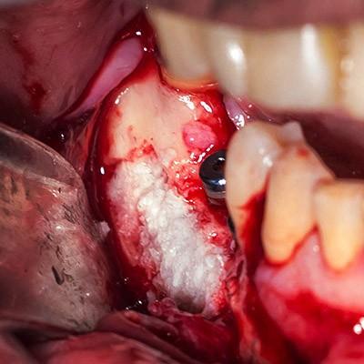 implantes implantología cursos training